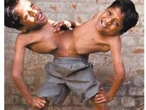 印度连体兄弟誓言永不分离