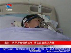 河源市龙川县:男子身患怪病三年 清贫家庭无以为继