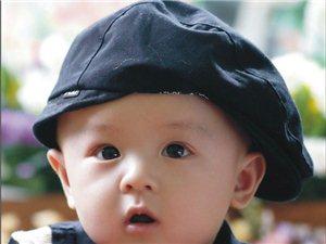 宝宝身上的缝针疤痕要怎么去除