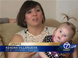美国孕妇遭闪电击中孩子出生1年后头发仍直立