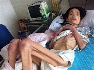 天下尽出现这种事情!女子遭婆婆虐待饿成40斤皮包骨非人非鬼,你何感?