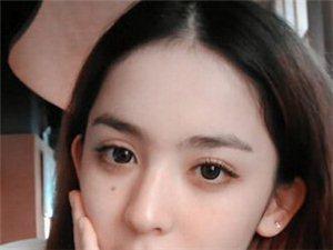 上海双眼皮修复术的注意事项